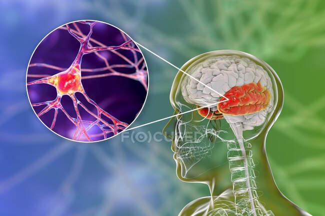 Cerebro humano con lóbulo temporal resaltado y vista de cerca de neuronas localizadas en lóbulo temporal, ilustración por computadora - foto de stock