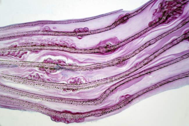 Micrografía ligera de huevos de trepa hepática en una aleta de pescado. - foto de stock