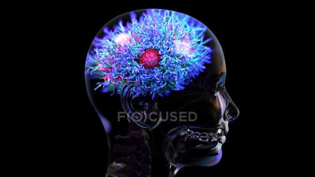 Illustrazione di un virus SARS-Cov-2 (rosso), la causa di Covid-19, che infetta il cervello — Foto stock