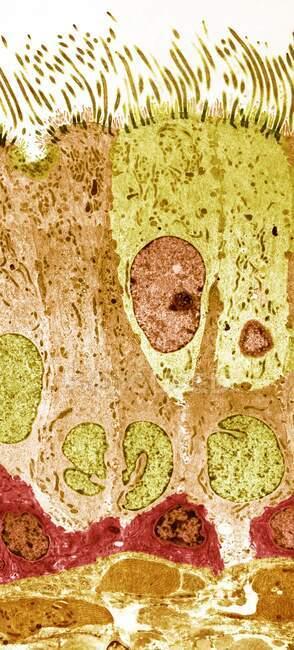 Forro de tráquea. Micrografía electrónica de transmisión coloreada (TEM) de una sección longitudinal a través del revestimiento de la tráquea (tráquea), que une la laringe (caja de voz) con los pulmones - foto de stock