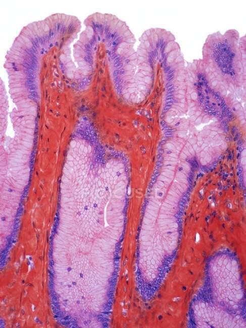 Epitelio superficial del estómago, micrografía ligera (LM). El epitelio superficial del estómago es un epitelio columnar simple formado por células mucosas altas que invaginan para formar los pozos gástricos. - foto de stock