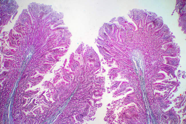 Tejido del intestino grueso humano, micrografía ligera. - foto de stock
