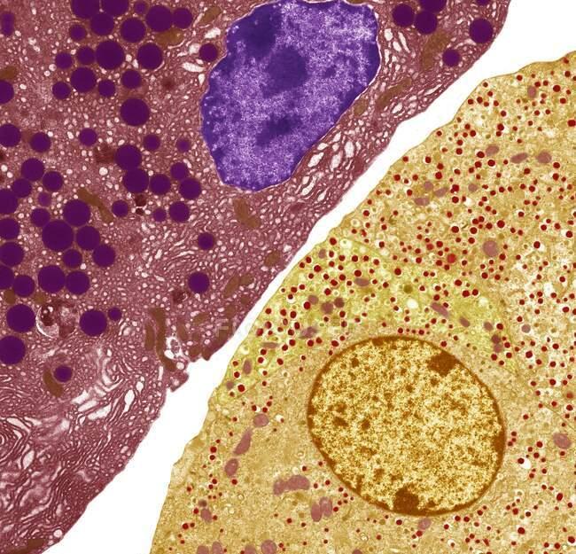 Células pancreáticas. Micrografía electrónica de transmisión coloreada (TEM) de células pancreáticas acinares (exocrinas) (rojas) adyacentes a células secretoras de hormonas (endocrinas) Islote de células de Langerhans (amarillas) - foto de stock