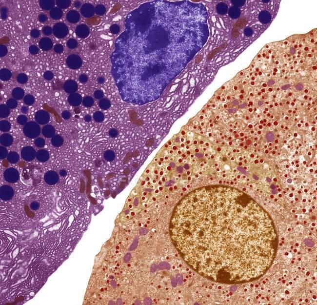 Células pancreáticas. Micrografia eletrônica de transmissão colorida (MET) de células pancreáticas acinares (exócrinas) (vermelhas) adjacentes a células secretoras de hormônios (endócrinas) ilhotas de Langerhans (amarelas) — Fotografia de Stock