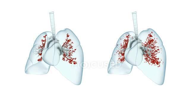 Infección pulmonar viral, ilustración. Pulmones inflamados infectados con partículas de virus. - foto de stock