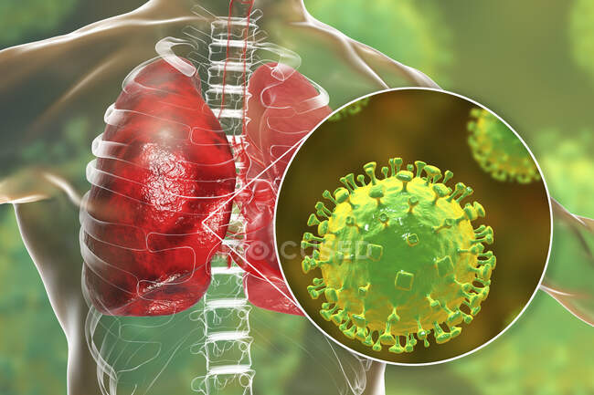 Virus Nipah en los pulmones, ilustración conceptual por computadora. El virus Nipah es zoonótico (transmitido a humanos de animales) y se encontró por primera vez en Malasia y Singapur en personas que tuvieron contacto cercano con cerdos. - foto de stock