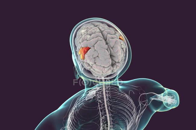 Cerebro humano con giro supramarginal resaltado, ilustración computacional. Está implicado en la percepción del lenguaje, ubicación de las extremidades, identificación de posturas y gestos de otras personas. - foto de stock