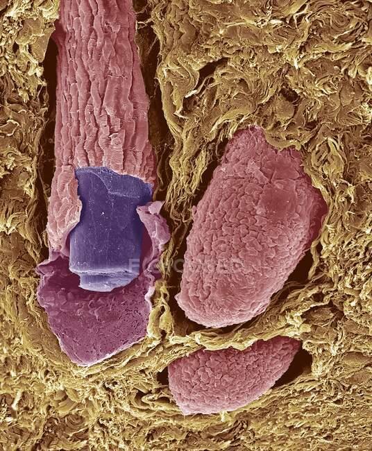 Folículos pilosos. Micrógrafo electrónico de barrido coloreado (SEM). La capa externa del cabello (la cutícula) tiene escamas superpuestas de queratina. Se cree que estas escamas evitan que los pelos se emparejen - foto de stock