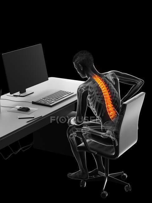 Hombre con dolor de espalda debido a sentarse, ilustración de la computadora - foto de stock