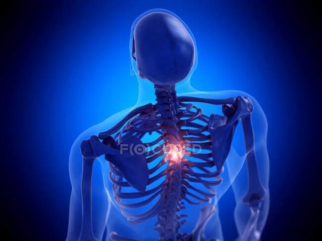 Espina dorsal dolorosa, ilustración por computadora - foto de stock