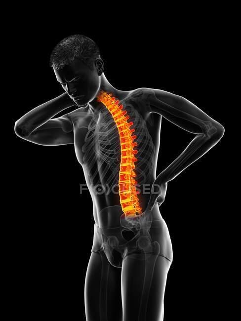 Hombre con dolor de espalda, ilustración por ordenador - foto de stock