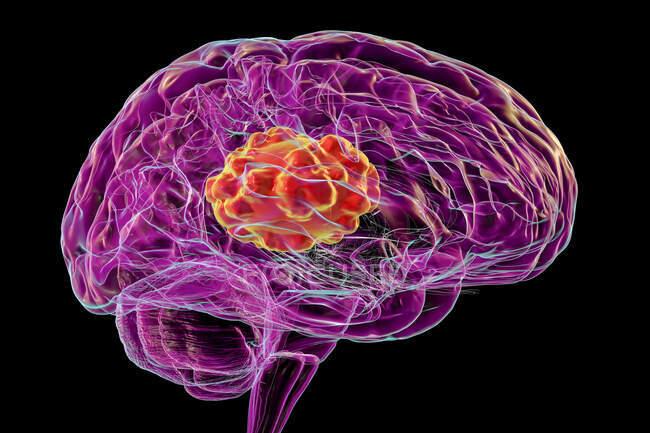 Mucormicosis cerebral, una lesión cerebral causada por Mucor sp. hongos, también conocido como hongo negro, con vista de primer plano de los hongos, ilustración por ordenador. Mucor sp. hongos se encuentran en el suelo y la materia orgánica en descomposición y son moldes interiores comunes - foto de stock