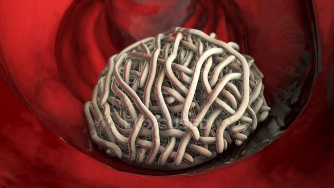 Gusanos redondos en el intestino humano, ilustración. Los gusanos redondos, o nematodos, incluyen numerosas especies patógenas y de vida libre - foto de stock