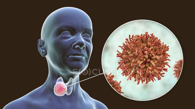 Cáncer de la glándula tiroides con vista de cerca de las células cancerosas, ilustración por computadora. - foto de stock