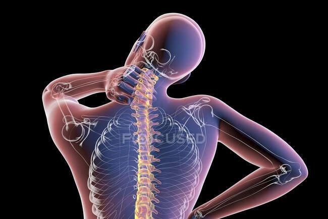 Dolor de cuello humano, ilustración por computadora. - foto de stock