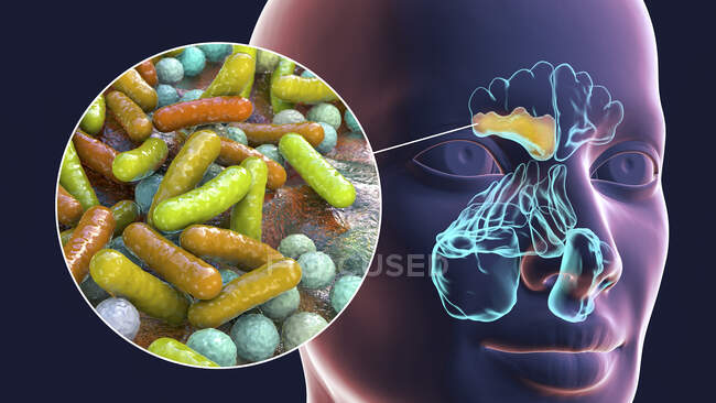 Bacterial sinusitis, computer illustration. The sinuses are membrane-lined air-filled spaces in the bones of the face. The frontal sinuses are above the eyes. Below these are the many lobed ethmoid sinuses and behind them the sphenoid sinuses — Stockfoto
