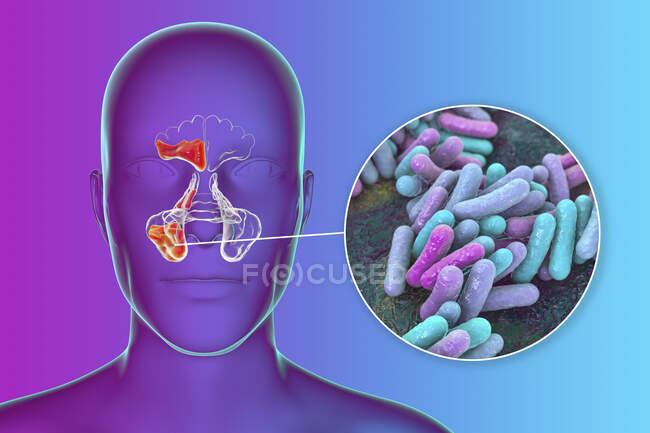 Sinusitis bacteriana, ilustración por computadora. Los senos paranasales son espacios llenos de aire revestidos de membrana en los huesos de la cara. Los senos frontales están por encima de los ojos. Debajo de éstos están los muchos senos etmoides lobulados y detrás de ellos los senos esfenoides - foto de stock