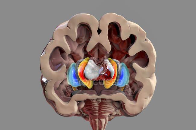 Ilustración por ordenador de los ganglios basales que muestran el núcleo caudado (naranja), putamen (azul) y ventrículos laterales (gris). - foto de stock