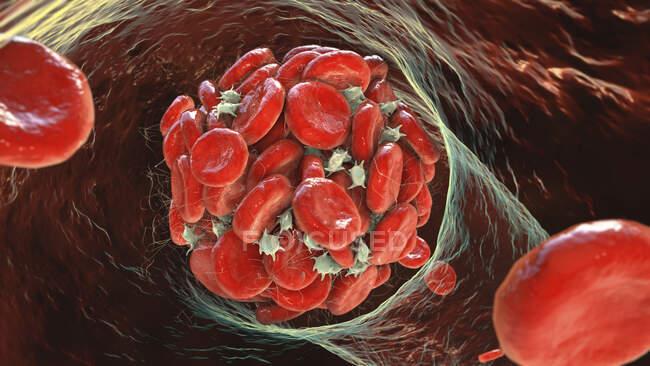 Coágulo de sangre, ilustración por computadora - foto de stock