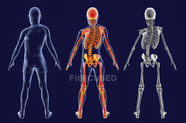 Scoliosis in children, computer illustration. A child, with highlighted skeleton, with a curved spine, uneven shoulders and hips. - foto de stock