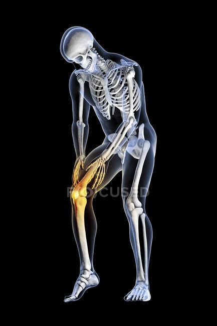 Human knee pain, computer illustration. - foto de stock
