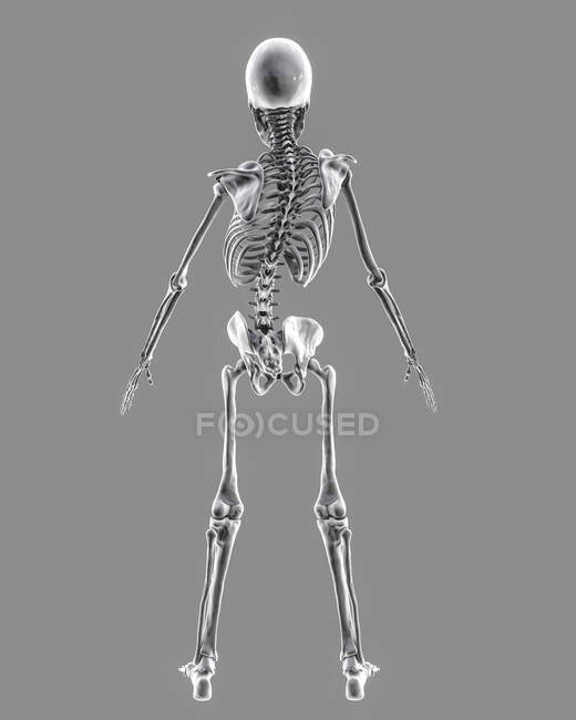 Scoliosis in children, computer illustration. A child skeleton with curved spine, uneven shoulders and hips. - foto de stock
