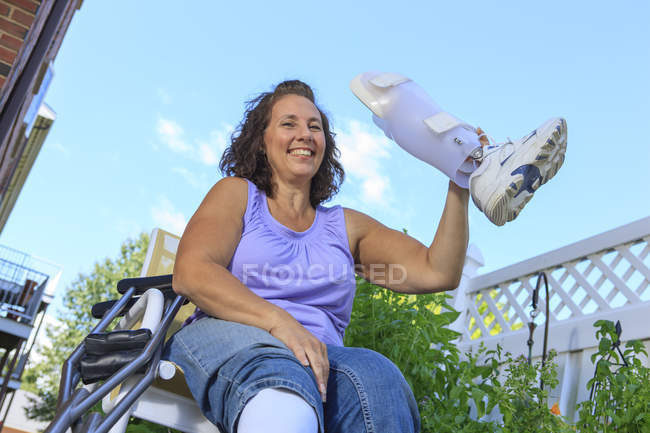 Женщина со Спиной Бифидой демонстрирует новую подтяжку ног — стоковое фото