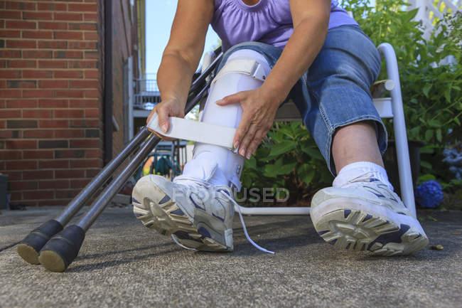 Donna con Spina Bifida che regola il tutore della gamba — Foto stock