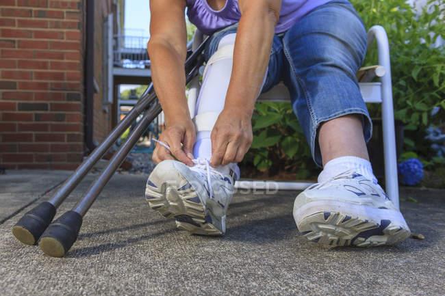 Женщина со спиной Бифида регулирует корсет для ног — стоковое фото