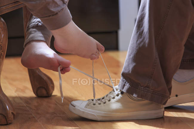Woman with TAR Syndrome tying her husband's shoe with her feet — Stock Photo