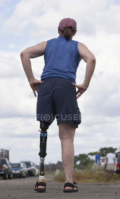 Woman with prosthetic leg standing on the road — Stockfoto