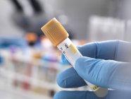 Technicien médical préparant un échantillon humain pour le dépistage du VIH — Photo de stock