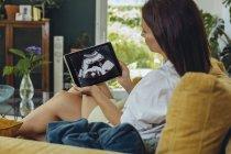 Mulher olhando para imagem de ultra-som de embrião no sofá — Fotografia de Stock