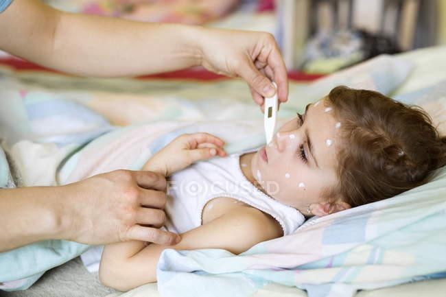 Chica que tiene varicela con termómetro - foto de stock