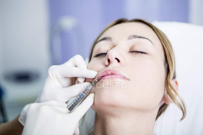 Woman receiving derma filler at surgery — Stock Photo
