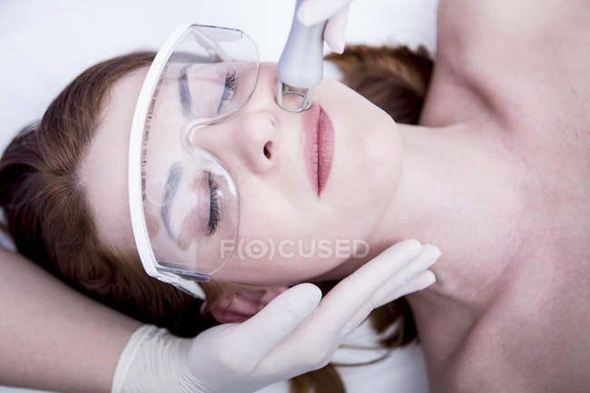 Woman receiving CO2 laser resurfacing — Stock Photo