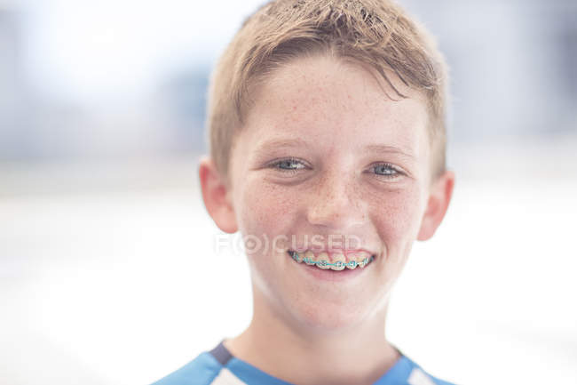 Portrait of ginger laughing boy with braces — Stock Photo