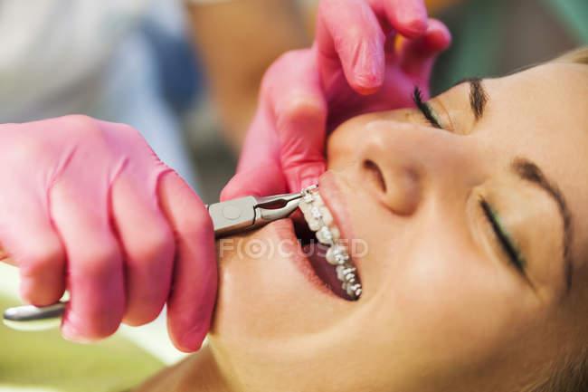 Ортодонт регулирует вид скобок крупным планом — стоковое фото