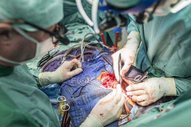 Chirurgen führen Herz-Bypass-Operation durch — Stockfoto