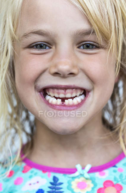 Portrait of little girl showing tooth gap — Stock Photo
