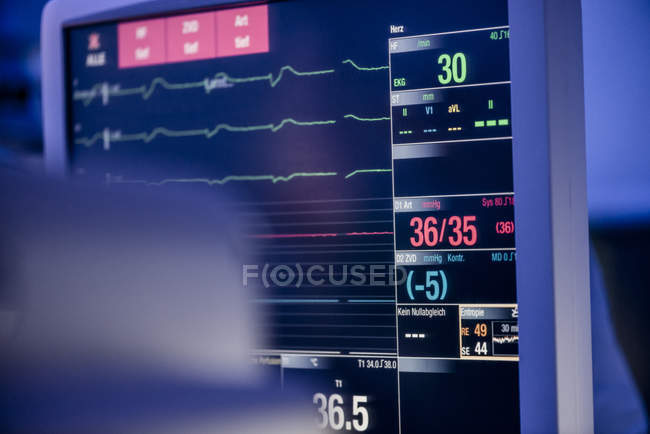 Patient monitor with graphics and measurings — Stock Photo