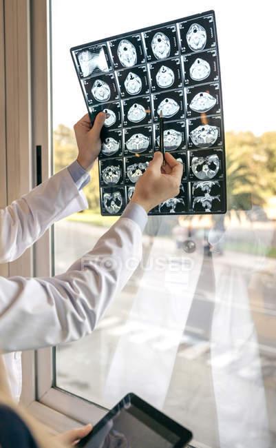 Dois médicos discutindo ressonância magnética na janela — Fotografia de Stock