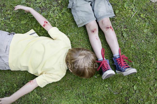 Verletzte Jungen liegen im Sommer auf Gras — Stockfoto