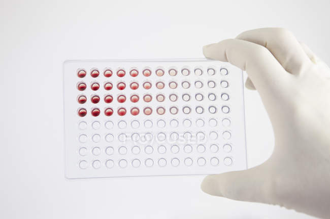 Scientifique recherchant du sang — Photo de stock