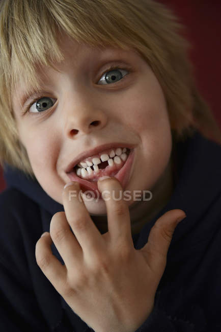 Nahaufnahme von Junge zeigt Zahnlücke — Stockfoto