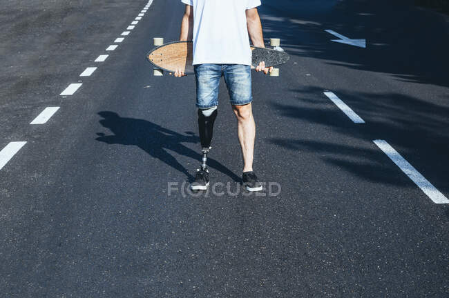 Young man with leg prosthesis holding skateboard on a road — Stock Photo