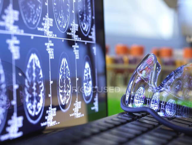 Результати сканування мозку відбивають захисні окуляри, які лежать на клавіатурі ноутбука. — стокове фото