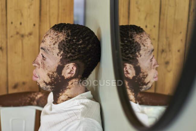 Giovane con la vitiligine e il suo riflesso nello specchio — Foto stock