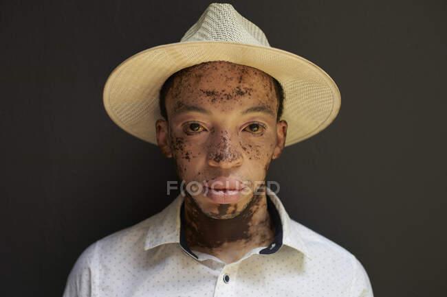 Retrato de un joven con vitiligo con sombrero - foto de stock