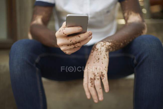 Joven con vitiligo usando smartphone - foto de stock